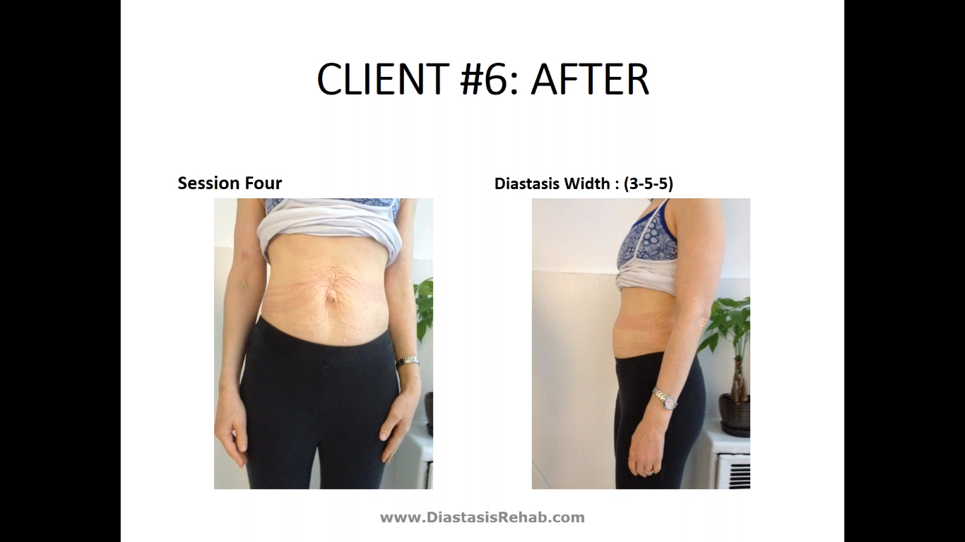 Diastasis Recti: More Than Just a Pre-Natal Concern for Trainers